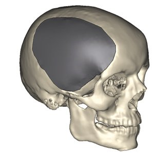 cranio-maxillofacial.jpg