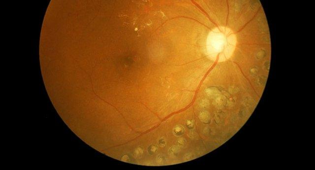 retinal scan.jpg