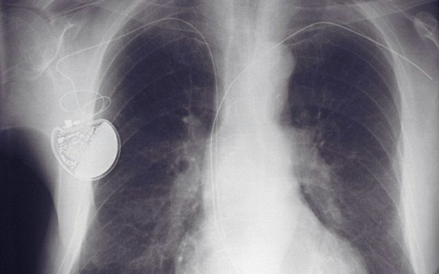 pacemaker x-ray.jpg