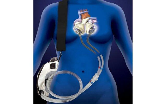 Artificial heart ONlein.jpg