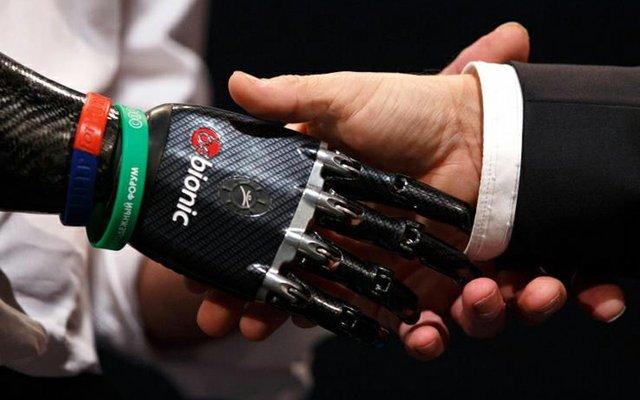 prosthetic-hand.jpg