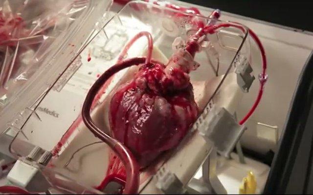 Heart in a box.jpg