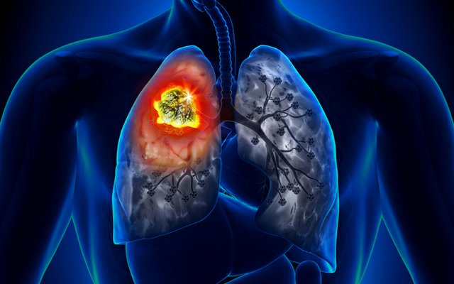 Lung cancer device_edited-1.jpg