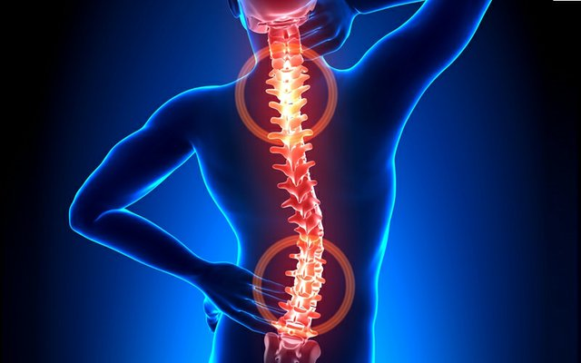 back pain bone rgafts.jpg