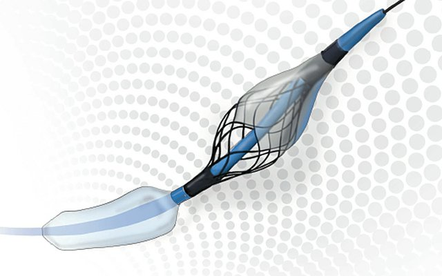 Contego Medical has announced the European commercialisation of its Paladin carotid post-dilation balloon, the first angioplasty balloon with Integrated Embolic Protection (IEP) technology.jpg