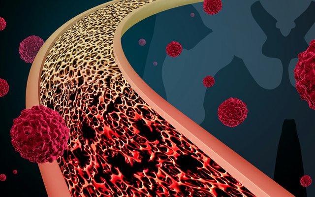 medtronic bone cancer.jpg