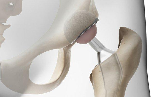 hip implant.jpg