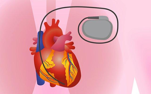 Biotronik pacemaker.jpg