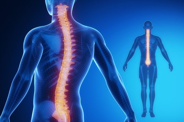 spinal implant.jpg