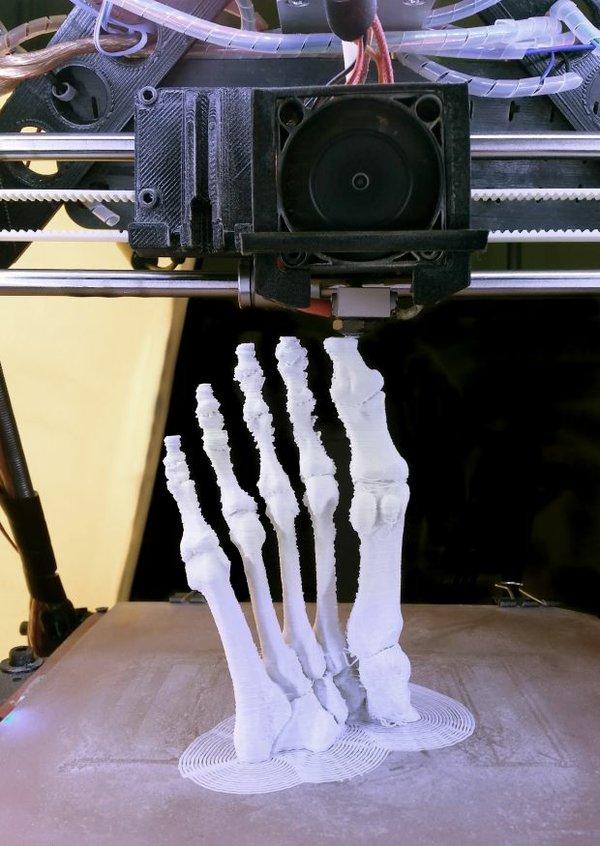 p14 and 16 bones 3D Printing Medical_2.jpg