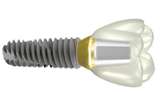 Ostem-T5-Implant-System-.jpg