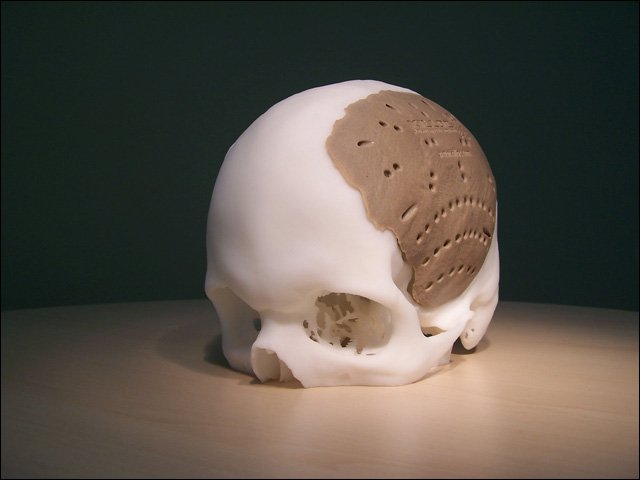 Additively Manufactured Cranial Plate.