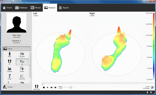 RS Footscan 3D Analysis