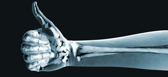 X-Ray Thumbs Up
