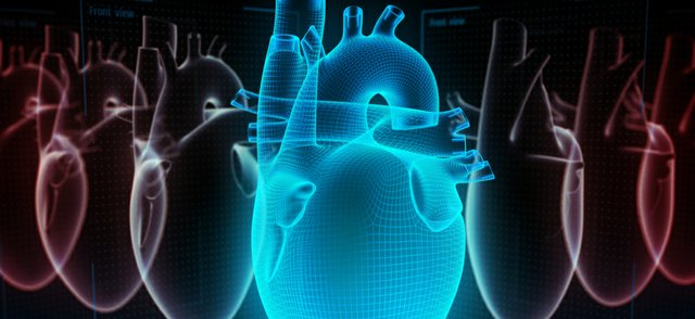 heart implant