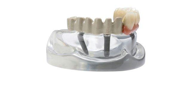 VictrexUK_232_JUVORA(TM) implant prosthetic framework (C) Juvora Ltd, an Invibio Company.jpg